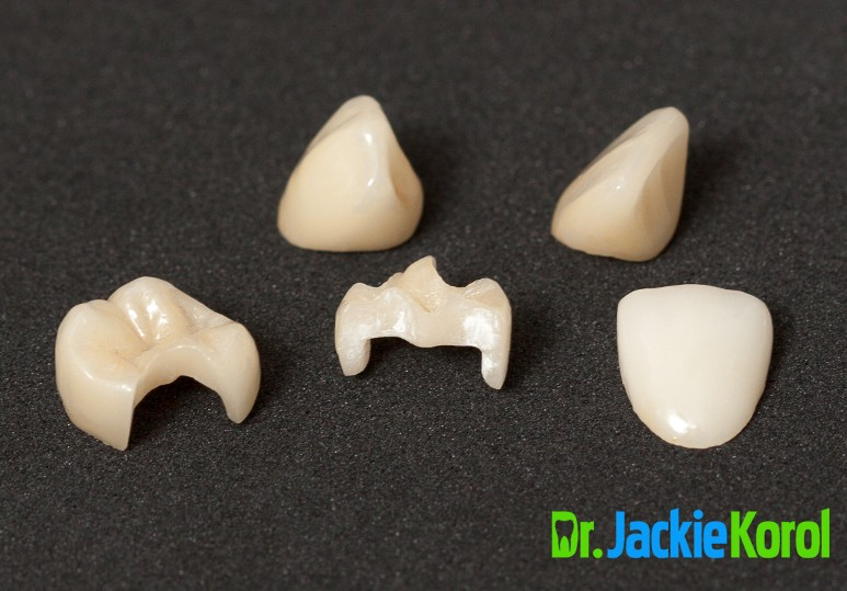 Preserve Your Enamel and Your Natural Smile With Inlays and Onlays
