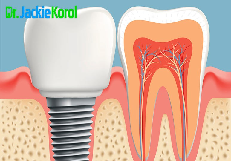 Dr. Jackie Korol What is a Tooth Implant?