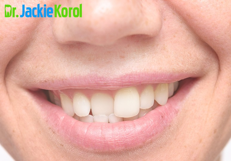 Dr Jackie Korol Dentist Calgary Alberta Could Crooked or Misaligned Teeth Be Bad for your Health?