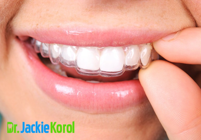 5 Key Things You Need to Know About Invisalign Before Committing