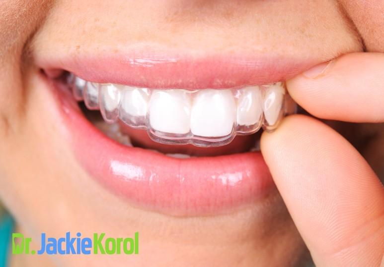 Teeth Straightening Options in Calgary: Invisalign