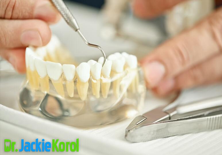 4 Types Of Ceramic Dental Crowns