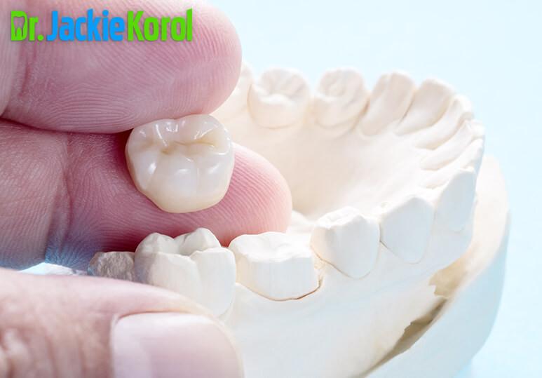 Dr Jackie Korol - Blog - Ceramic Teeth