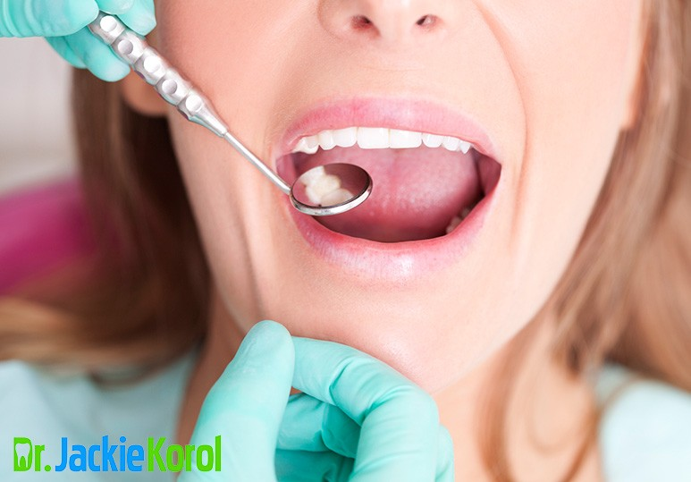 Dental Fillings Calgary